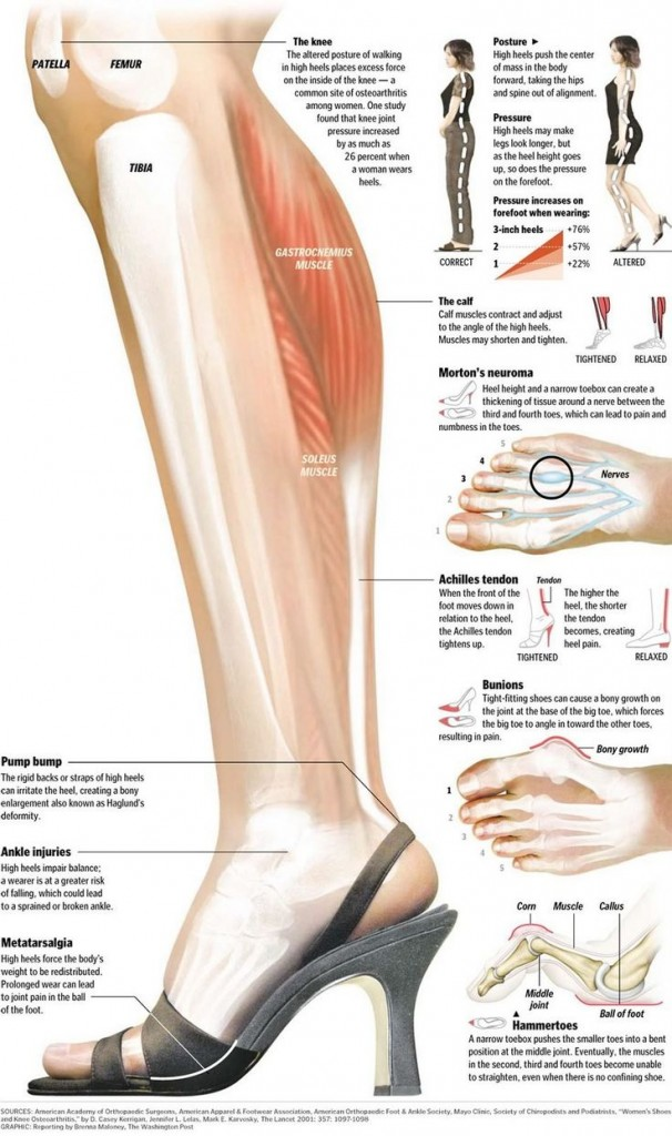 High heels anatomy